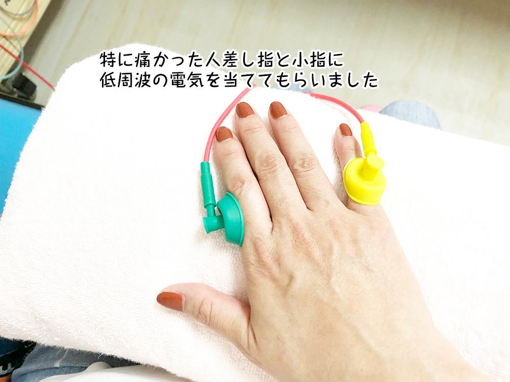 特に痛かった人差し指と小指に 低周波の電気を当ててもらいました